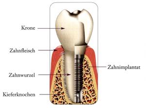 Quelle K Chen Freiburg zahn implantate chemnitz zahnarzt dr mehmke kollegen